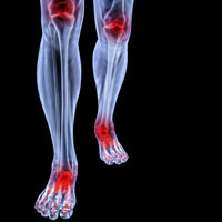 Knee Ankle Joint Pain
